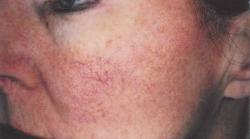 Le traitement de la couperose et des varicosités par laser à Liège