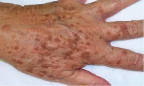 Enlever les taches brunes du visage ou du corps avec le laser Picosure - Liège