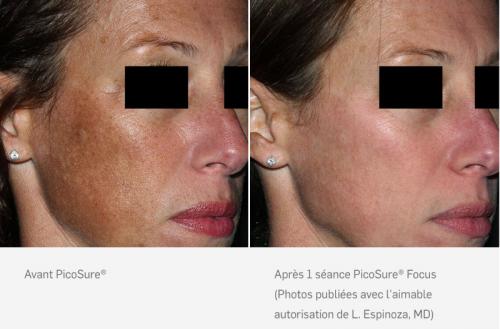 Rajeunissement cutané du visage au laser PicoSure® Focus - Liège